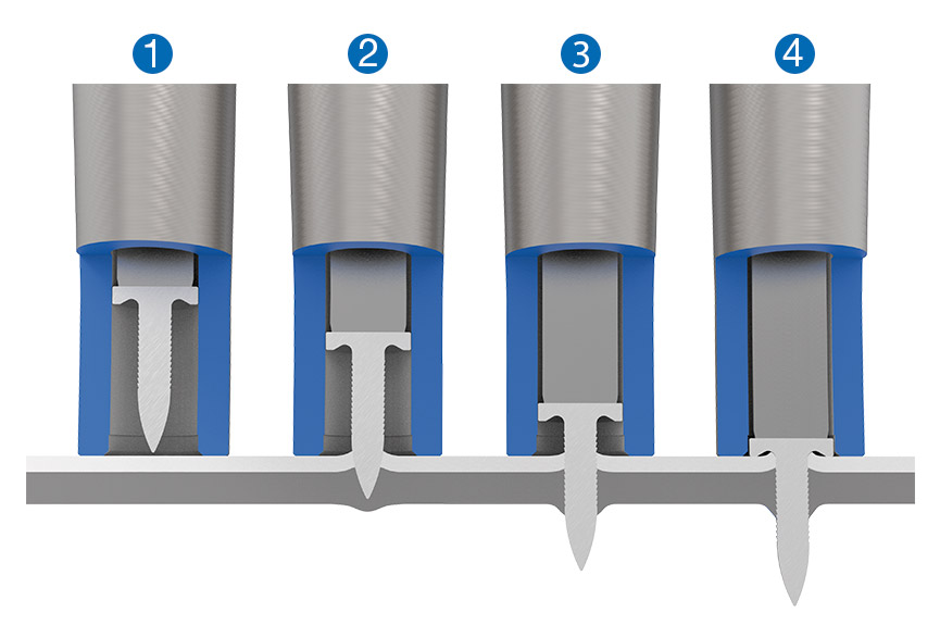 RIVTAC<sup>®</sup>操作程序——1)定位,2)进入,3)穿透,4)支撑
